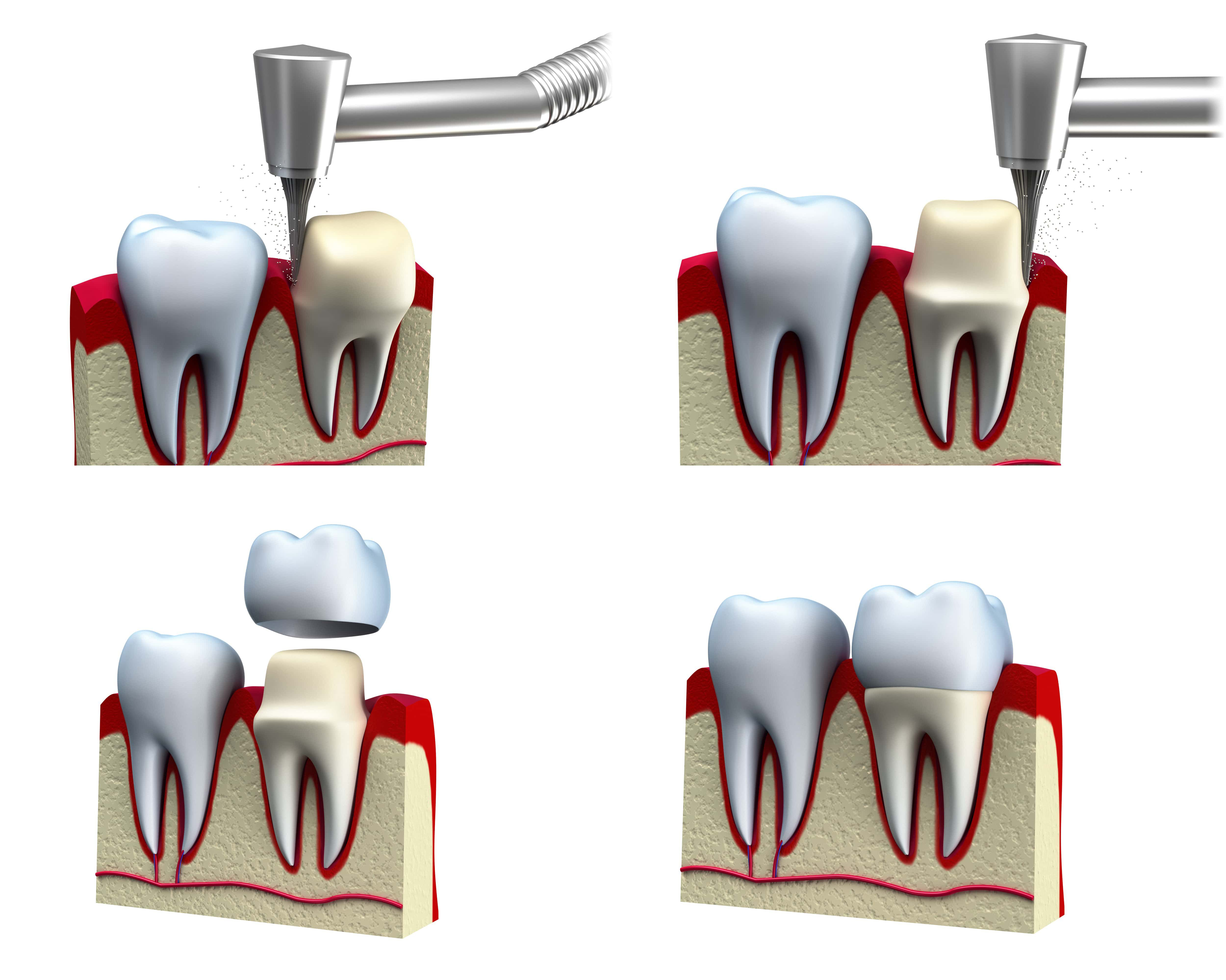 The process of preparing a tooth for a dental crown shown in four steps