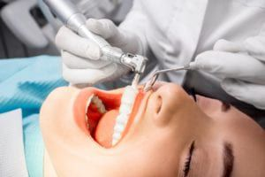 Woman getting her teeth professionally cleaned