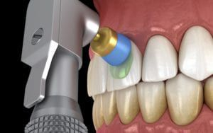 Computerized image of teeth cleaning