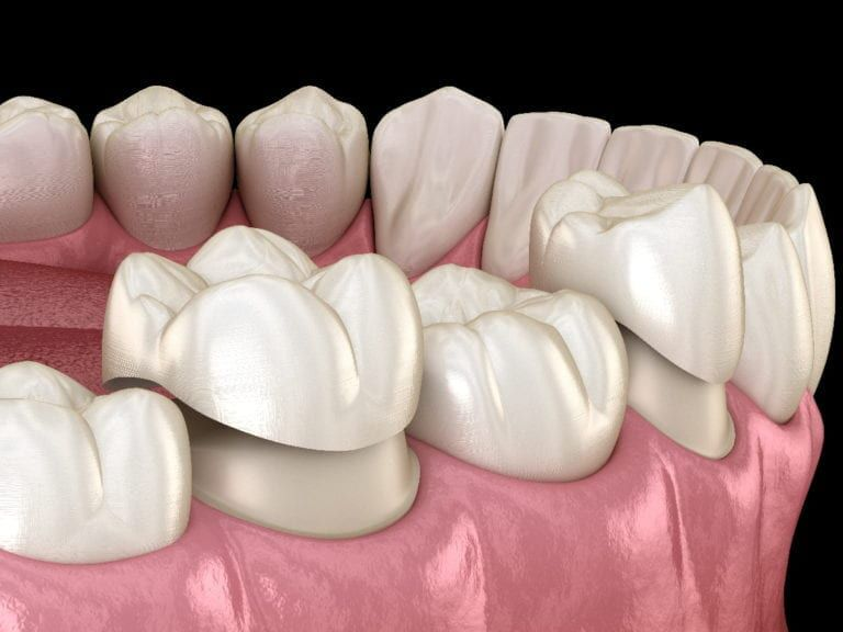 Rendered image of porcelain veneers
