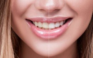 Woman Smiling showing teeth before and after whitening